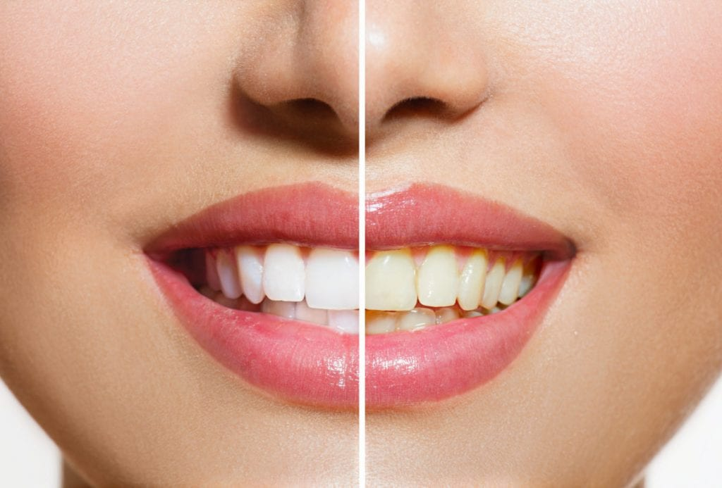 woman that got teeth whitening done