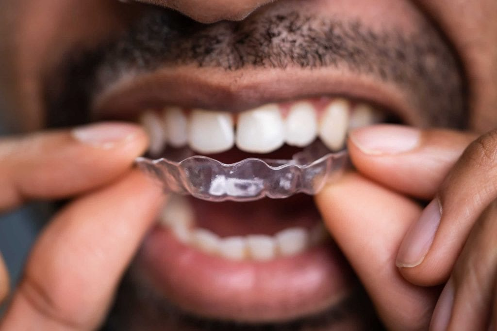 patient putting Invisalign on for the first time
